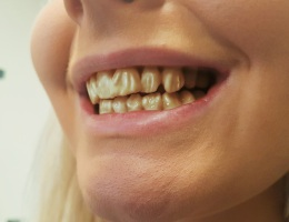 3D Printed Character Teeth