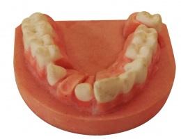 Moulded-teeth