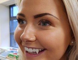 3D Printed Vampire Teeth